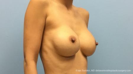 Philadelphia Breast Augmentation 13178 - Before Image 2