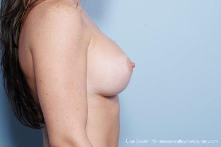 Philadelphia Breast Augmentation 8785 -  After Image 4
