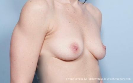 Philadelphia Breast Augmentation 8783 - Before Image 2
