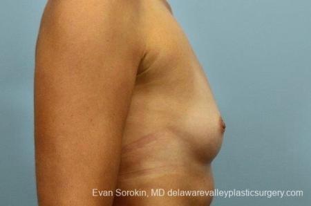 Philadelphia Breast Augmentation 8764 - Before Image 4