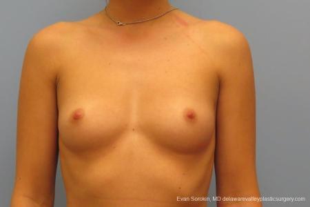 Philadelphia Breast Augmentation 8666 - Before Image 1
