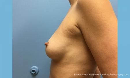 Philadelphia Breast Augmentation 12514 - Before and After Image 5