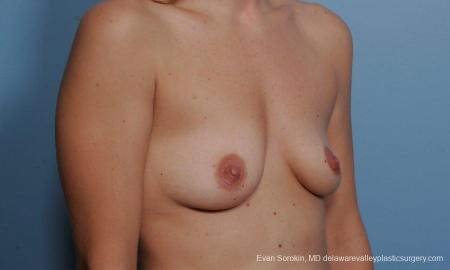 Philadelphia Breast Augmentation 9360 - Before Image 2