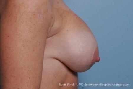 Philadelphia Breast Lift and Augmentation 8690 - Before Image 4