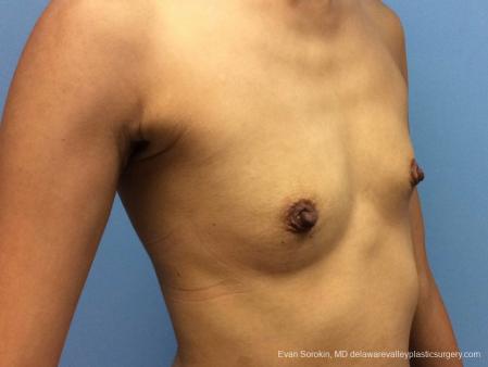 Philadelphia Breast Augmentation 13071 - Before Image 2