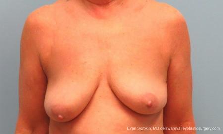 Philadelphia Breast Lift and Augmentation 9598 - Before Image 1