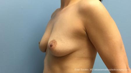Philadelphia Breast Augmentation 12541 - Before Image 3