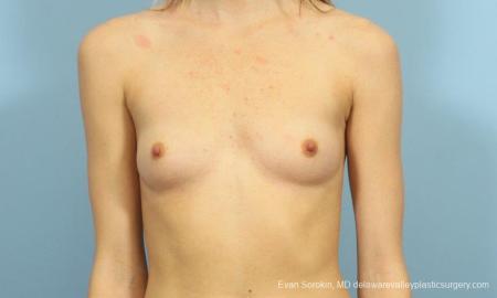 Philadelphia Breast Augmentation 8660 - Before Image 1