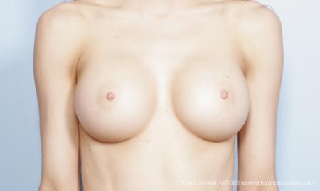 Philadelphia Breast Augmentation 8644 -  After Image 1