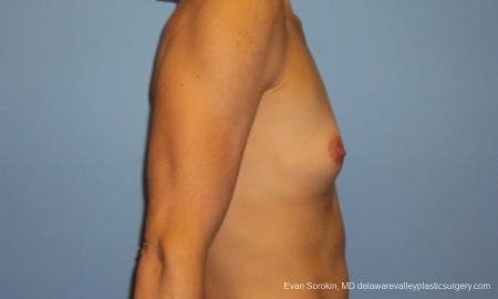 Philadelphia Breast Augmentation 10248 - Before Image 3