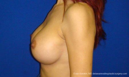 Philadelphia Breast Augmentation 9294 -  After Image 3