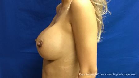 Philadelphia Breast Augmentation 13178 -  After Image 5