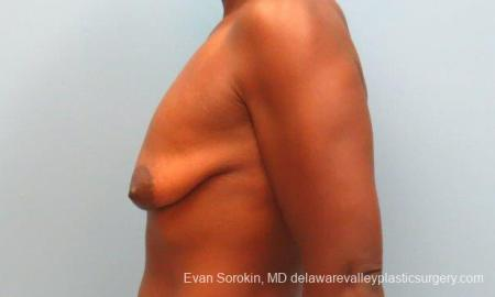 Philadelphia Breast Lift and Augmentation 10120 - Before and After Image 4