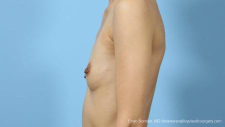 Philadelphia Breast Augmentation 9291 - Before and After Image 5