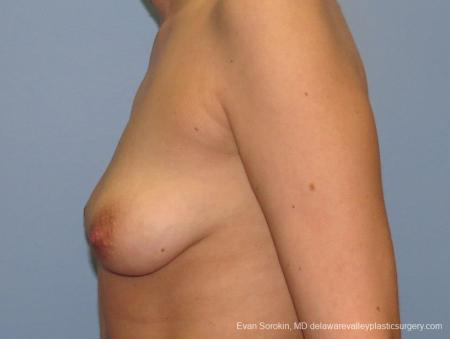 Philadelphia Breast Lift and Augmentation 10115 - Before and After Image 5