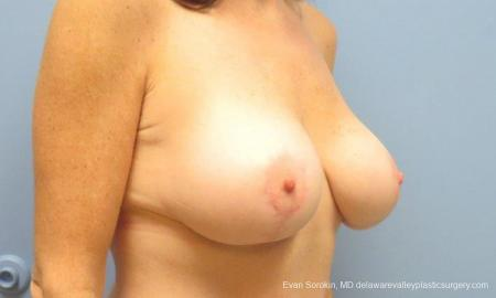 Philadelphia Breast Lift and Augmentation 9486 -  After Image 2