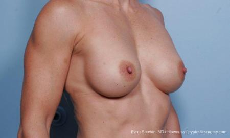 Philadelphia Breast Augmentation 9455 - Before Image 2