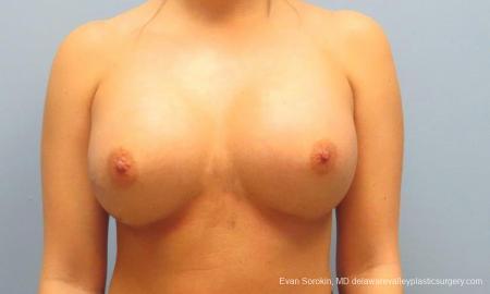 Philadelphia Breast Augmentation 9394 -  After Image 1