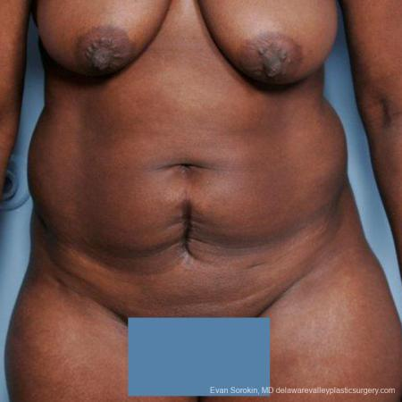 Philadelphia Abdominoplasty 9477 - Before Image 1