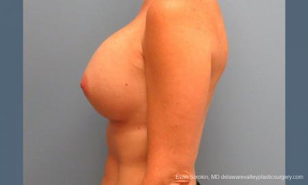 Philadelphia Breast Augmentation 9456 -  After Image 5