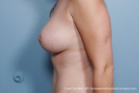 Philadelphia Breast Lift and Augmentation 8680 -  After Image 5