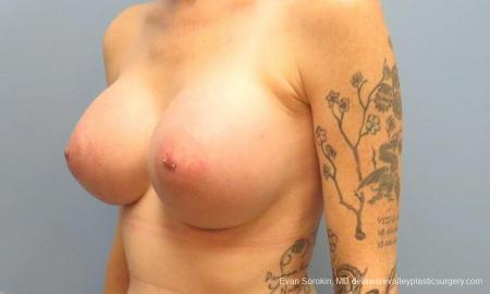 Philadelphia Breast Augmentation 9371 -  After Image 4