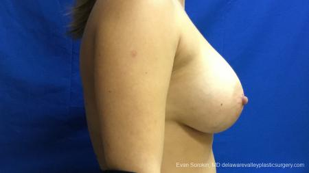 Philadelphia Breast Augmentation 13173 -  After Image 3