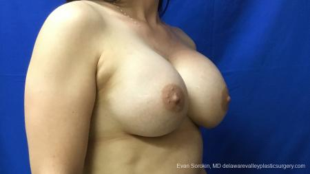 Philadelphia Breast Augmentation 12541 -  After Image 2