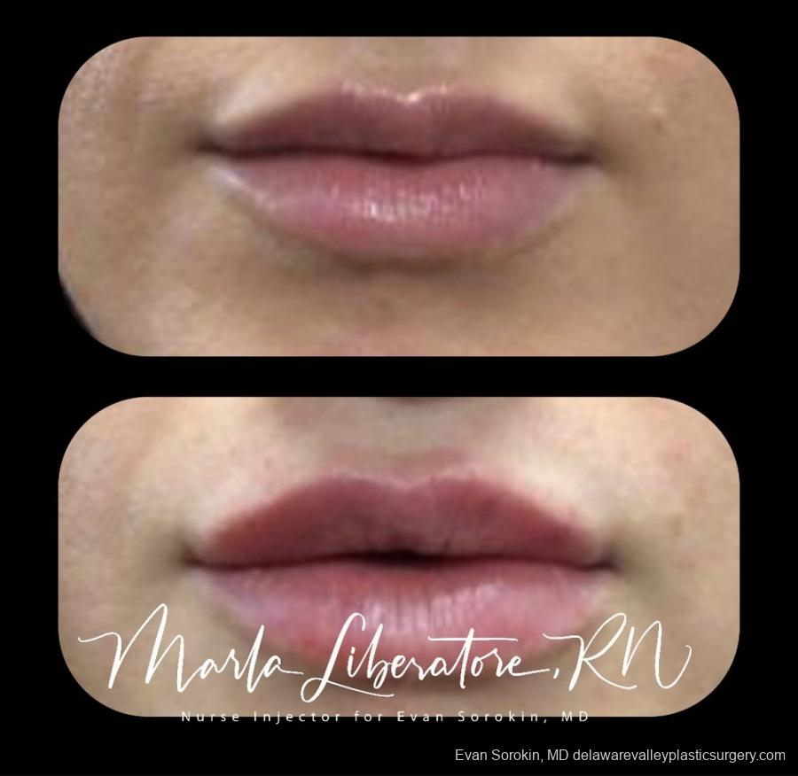 Lip Filler: Patient 1 - Before and After Image 1