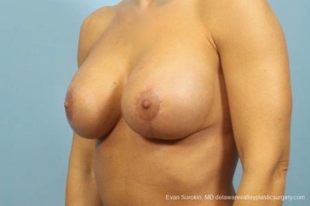 Philadelphia Breast Augmentation 8709 -  After Image 3