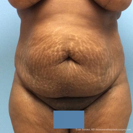 Philadelphia Abdominoplasty 10817 - Before Image 1