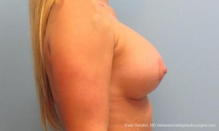 Philadelphia Breast Lift and Augmentation 9370 -  After Image 5