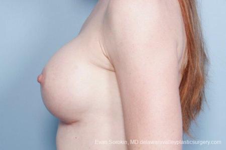 Philadelphia Breast Augmentation 9169 -  After Image 5