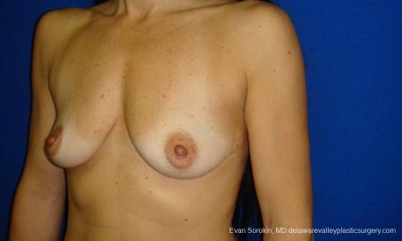 Philadelphia Breast Augmentation 9413 - Before Image 4