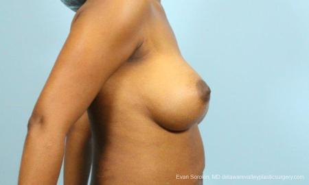 Philadelphia Breast Augmentation 9173 -  After Image 3