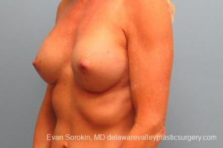 Philadelphia Breast Augmentation 9415 -  After Image 4