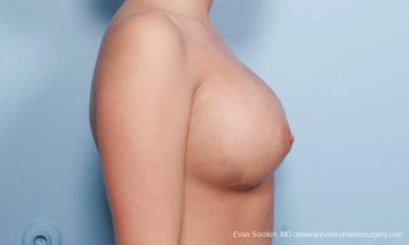 Philadelphia Breast Augmentation 9394 - Before Image 3
