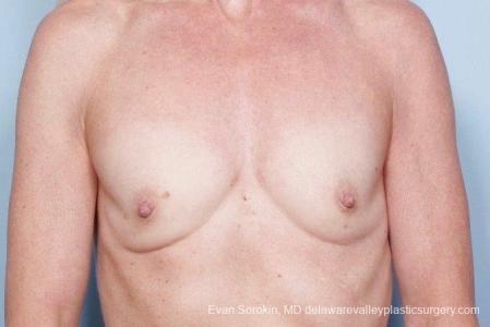 Philadelphia Breast Augmentation 8770 - Before Image 1
