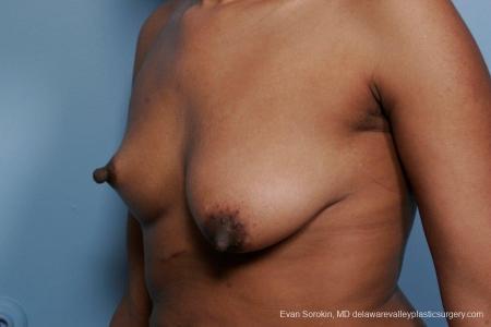 Philadelphia Breast Lift and Augmentation 8689 - Before Image 3