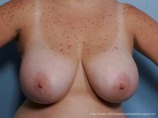 Philadelphia Breast Reduction 8703 - Before Image
