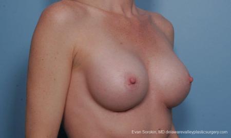 Philadelphia Breast Augmentation 9359 -  After Image 2