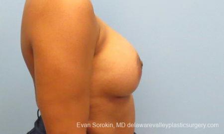 Philadelphia Breast Augmentation 9387 -  After Image 3