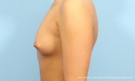 Philadelphia Breast Augmentation 9393 - Before and After Image 5