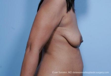 Philadelphia Breast Lift and Augmentation 8692 - Before Image 4