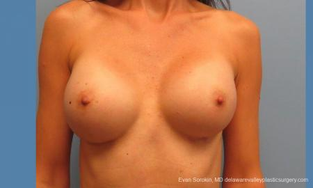 Philadelphia Breast Augmentation 9417 -  After Image 1