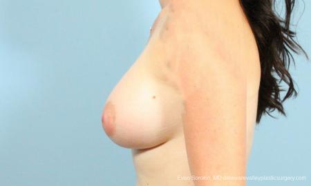 Philadelphia Breast Augmentation 9346 -  After Image 5