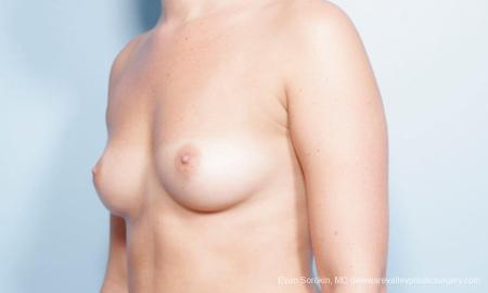 Philadelphia Breast Augmentation 9303 - Before and After Image 4