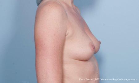 Philadelphia Breast Augmentation 9178 - Before Image 3