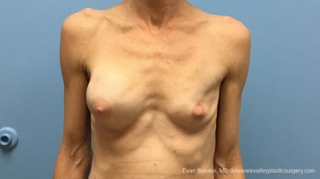 Philadelphia Breast Augmentation 13182 - Before Image 1