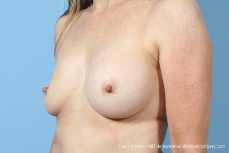 Philadelphia Breast Augmentation 8708 - Before Image 3